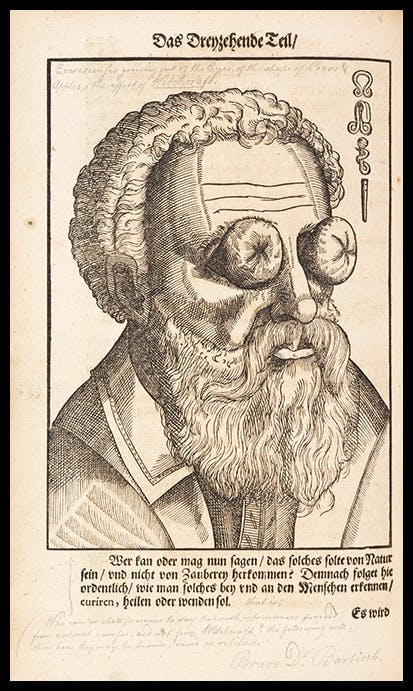 Disease of the eyes caused by witchcraft, from Opthalmodouleia, 1583, by Georg Bartisch